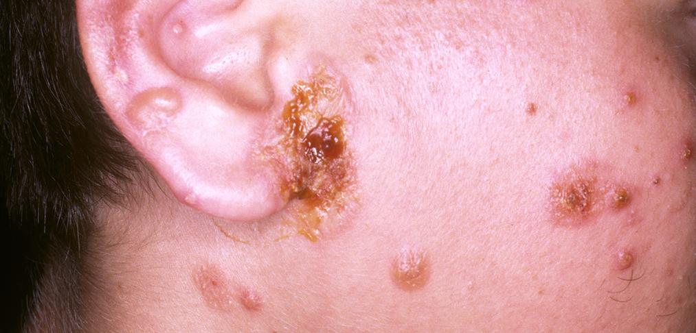 Ivermectin for human demodex mites